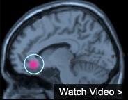 Watch Video about Deep Brain Stimulation for Depression