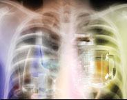 alcoholic lung disease articles