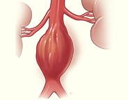 aeortic aneurysm